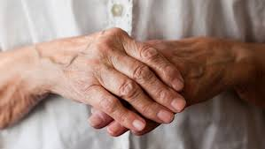 Healthy-image-arthritis-hands